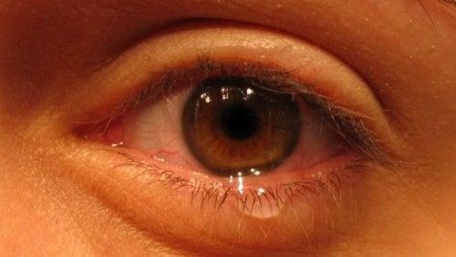 olho-triste-500x282