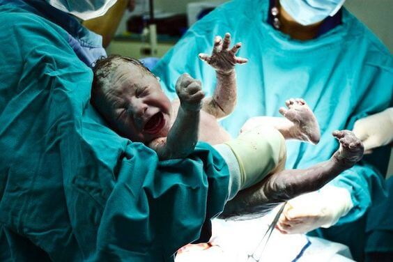 Nascer por cesárea pode ser prejudicial à saúde?
