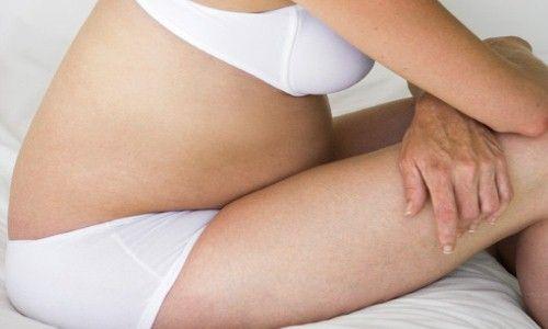 Recomendações para tratar as hemorroidas durante a gravidez