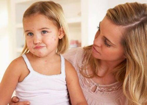 Os perigos de dar ibuprofeno para crianças com catapora