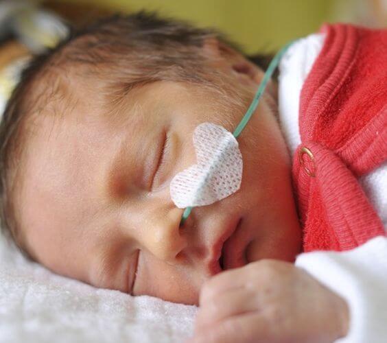 Casos incríveis de bebês prematuros