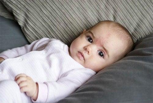 O que causam as manchas de nascença nos bebês?