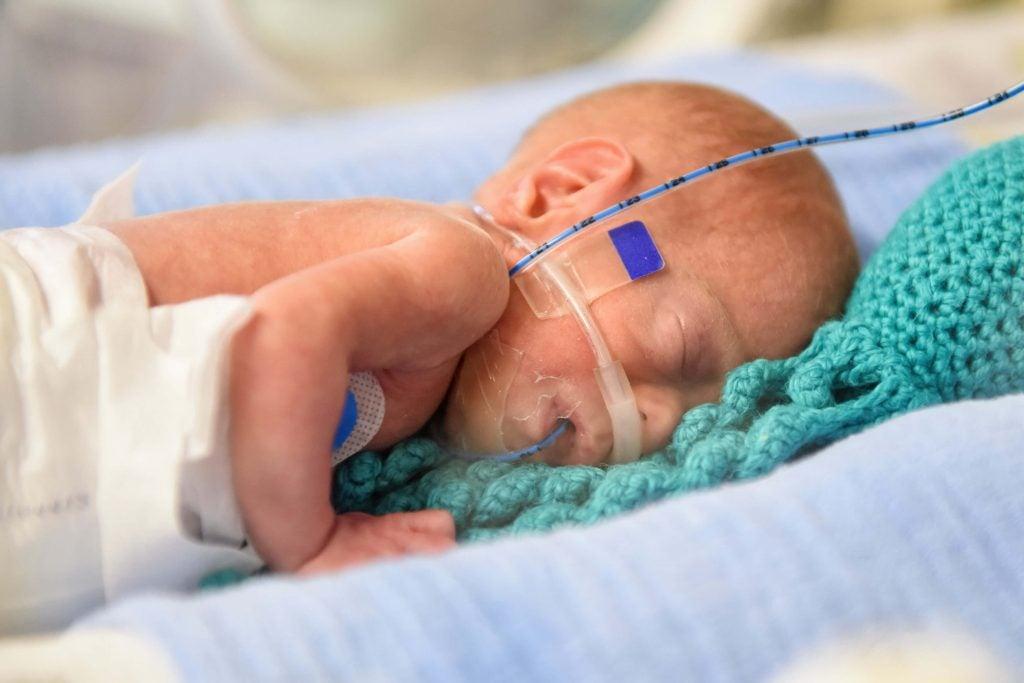 Cada vez mais bebês prematuros extremos sobrevivem