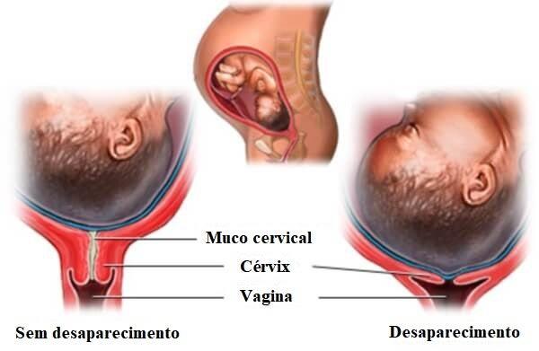 desaparecimento do colo do útero