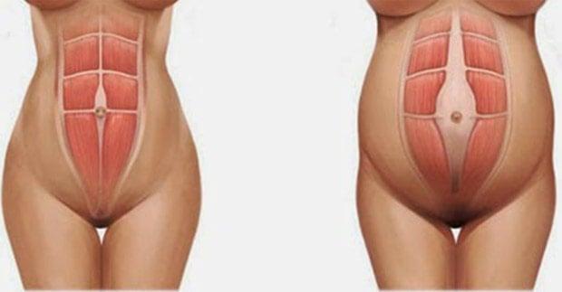 barriga de mulher grávida com diástase abdominal