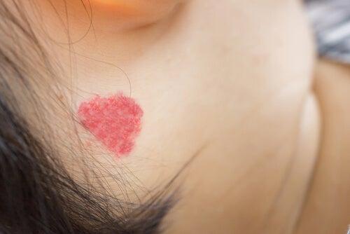 Angiomas na pele