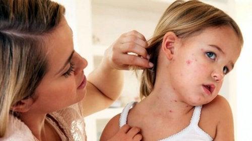 Mãe cuidando da filha com sarampo
