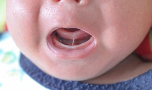 Anquiloglossia ou freio lingual curto nas crianças