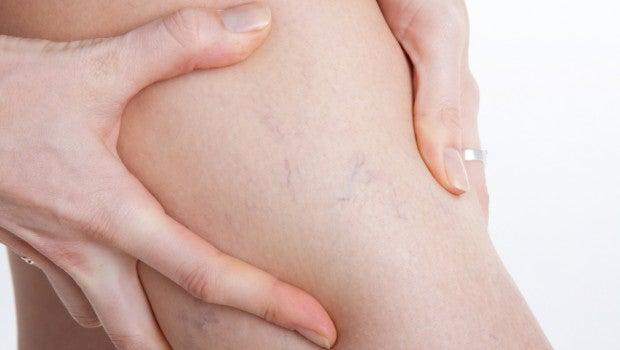 varizes nas pernas da mulher