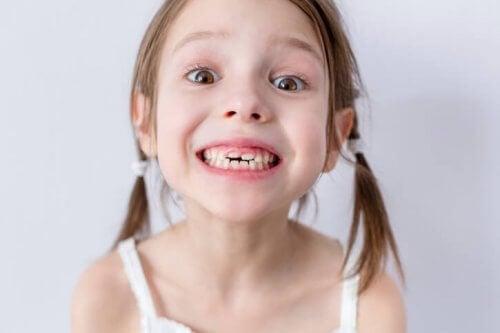 A quedas dos dentes de leite nas crianças