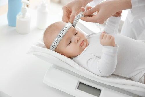 Medir a cabeça do bebê é um modo de identificar a plagiocefalia posicional