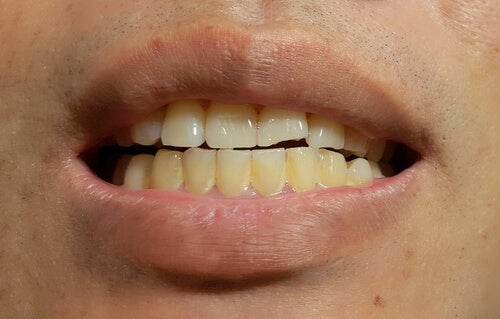 Aparecimento de manchas nos dentes permanentes