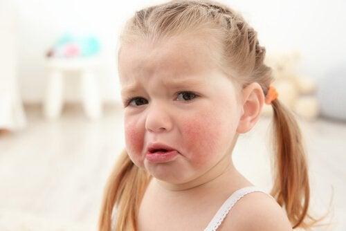 menina com alergia alimentar