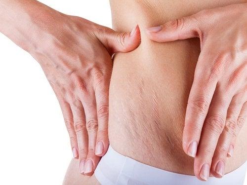 estrias na lateral da barriga