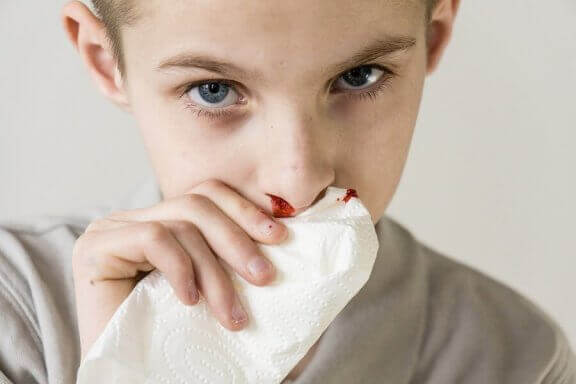 Hemorragia nasal: por que o nariz do seu filho sangra?