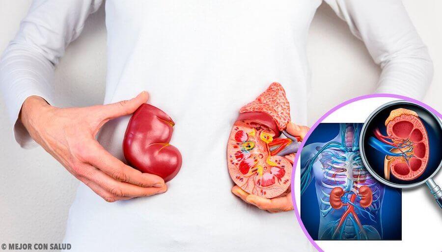 câncer nos rins