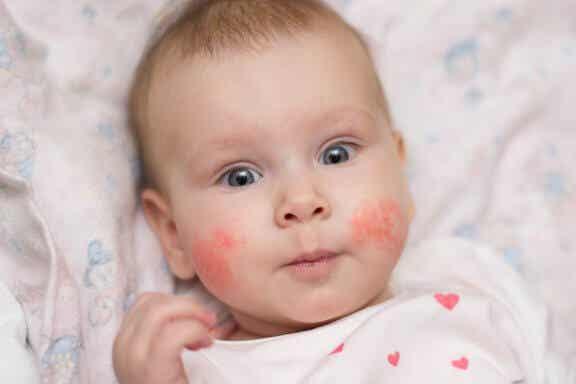 Dermatite atópica em crianças: como prevenir os surtos
