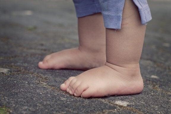 Acondroplasia em crianças