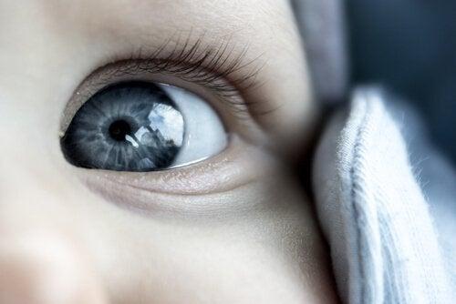 A importância de tratar o olho vago em crianças