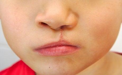 Fatores que causam as malformações craniofaciais em bebês