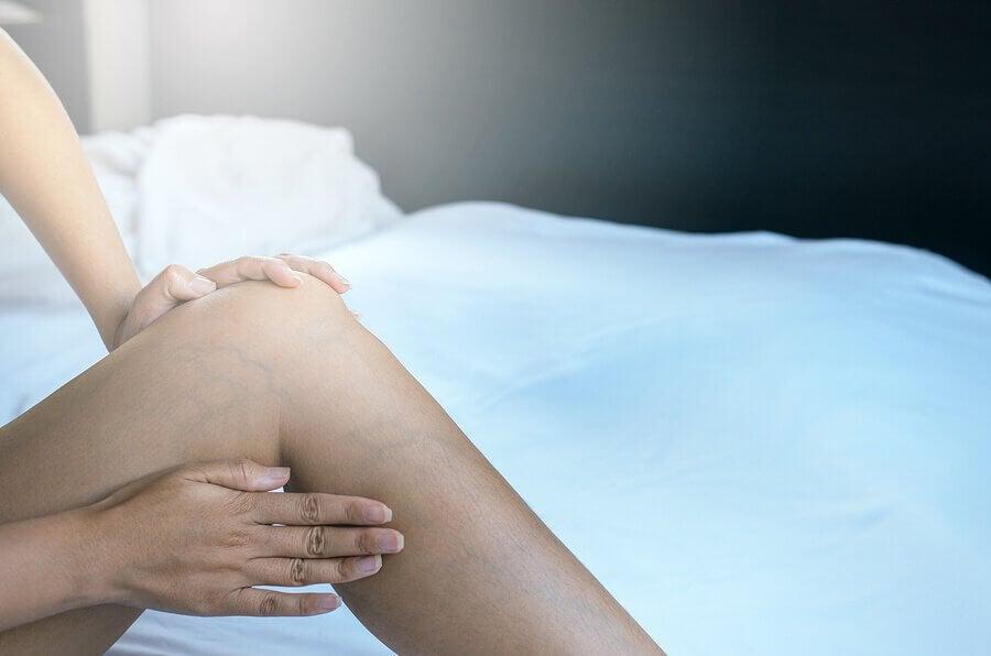 Como eliminar as varizes durante a gravidez?