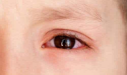 Derrames oculares em crianças