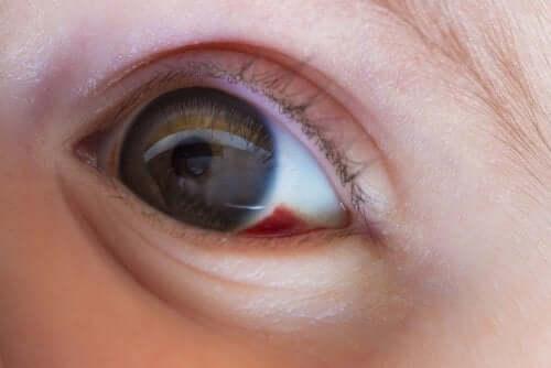 O que é um derrame ocular