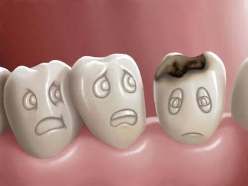 Cáries dentárias: o que são e como evitar?