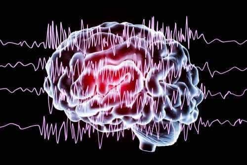 Distúrbios paroxísticos não epiléticos em crianças