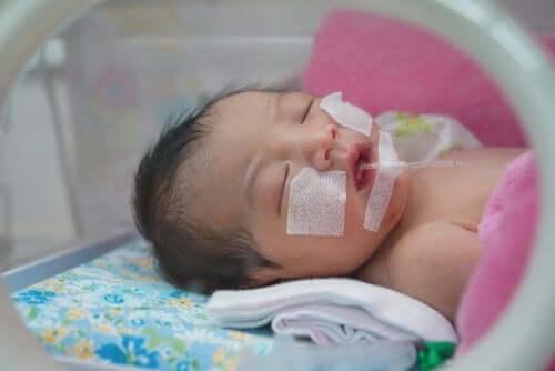Síndrome do desconforto respiratório no recém-nascido