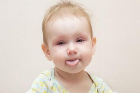 Conjuntivite em bebês
