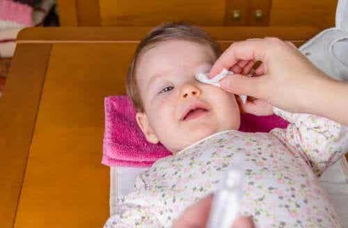 Conjuntivite em bebês: como tratá-la?