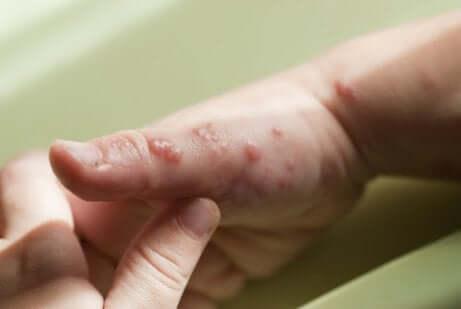 Bolhas causadas pelo herpes na mão de uma criança