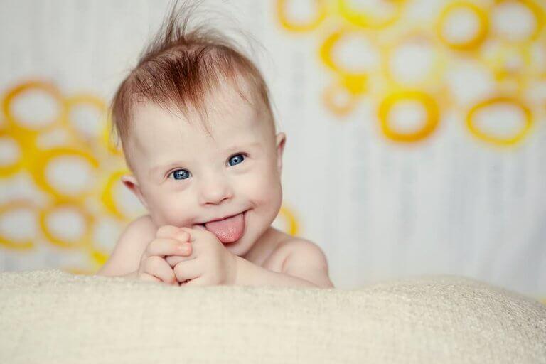 A síndrome de Down e a amamentação