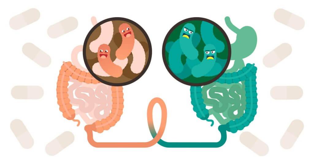 O que é um transplante fecal e quando ele é recomendado?