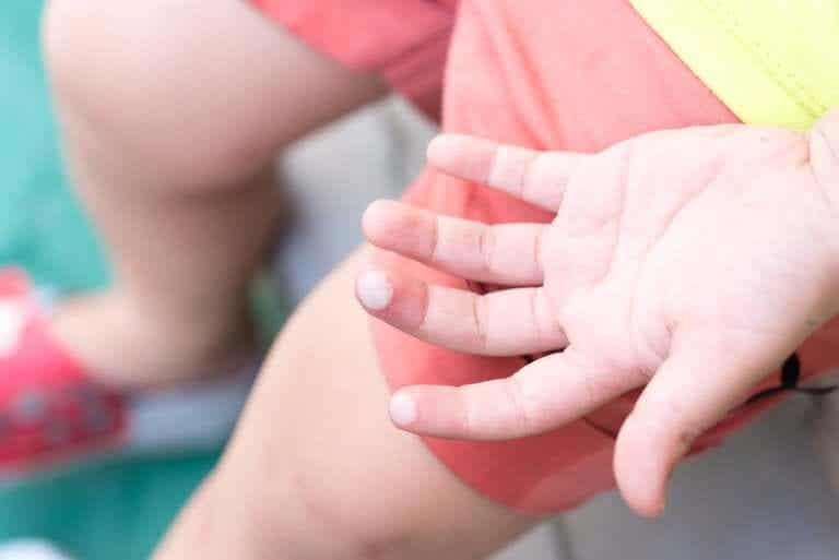 Como tratar as bolhas das crianças?