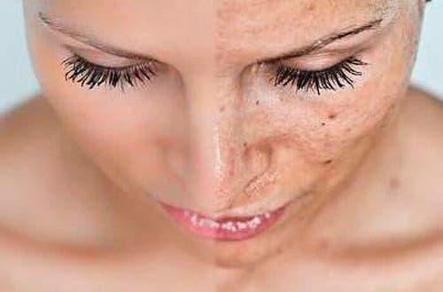 """É muito comum aparecerem manchas ou alterações na pele durante a gravidez. Essas marcas geralmente aparecem como manchas escuras, comumente conhecidas como máscara da gravidez; o seu nome médico é cloasma ou melasma. No início da gravidez, o corpo da mulher passar por mudanças todos os meses. Inclusive, são registradas alterações que podem causar desconforto e é necessário estar devidamente preparada para elas. Você sabe como agir diante das manchas que aparecem na pele? Por que há manchas e alterações na pele durante a gravidez? Durante os nove meses de gestação, os níveis hormonais aumentam e é possível que isso cause manchas na pele de algumas mães. É justamente esse aumento de hormônios que gera as manchas no corpo. Os cloasmas, também conhecidos como melasma ou """"máscara da gravidez"""", são manchas que aparecem no rosto, na maioria dos casos, durante a gravidez. Às vezes, podem causar coceira. No entanto, as suas consequências não vão além da estética. De fato, as manchas podem causar mais problemas emocionais do que físicos, pois geralmente afetam a autoestima da mulher, que se sente preocupada e envergonhada pela sua aparência. A grande maioria das alterações na pele durante a gravidez aparece na área do rosto, principalmente na testa, no nariz, nas maçãs do rosto e nas bochechas. Elas também se manifestam no lábio superior e, menos comumente, ao redor dos olhos. Além disso, também podem aparecer em áreas como antebraços, axilas, virilha, barriga e outros lugares expostos ao sol. Essas manchas marrons aparecem, na maioria dos casos, durante os últimos seis meses de gravidez. Além disso, elas também podem aparecer devido a fatores genéticos; assim, é possível ser mais propensa a desenvolvê-las se houver familiares diretos que já apresentaram essas características anteriormente. Tipos de cloasma Existem três tipos de cloasma, que dependem da profundidade da melanina: • Dérmico: Aparece na derme, apresenta bordas difusas e se localiza nas maçãs do rosto. • Epidérmi"""