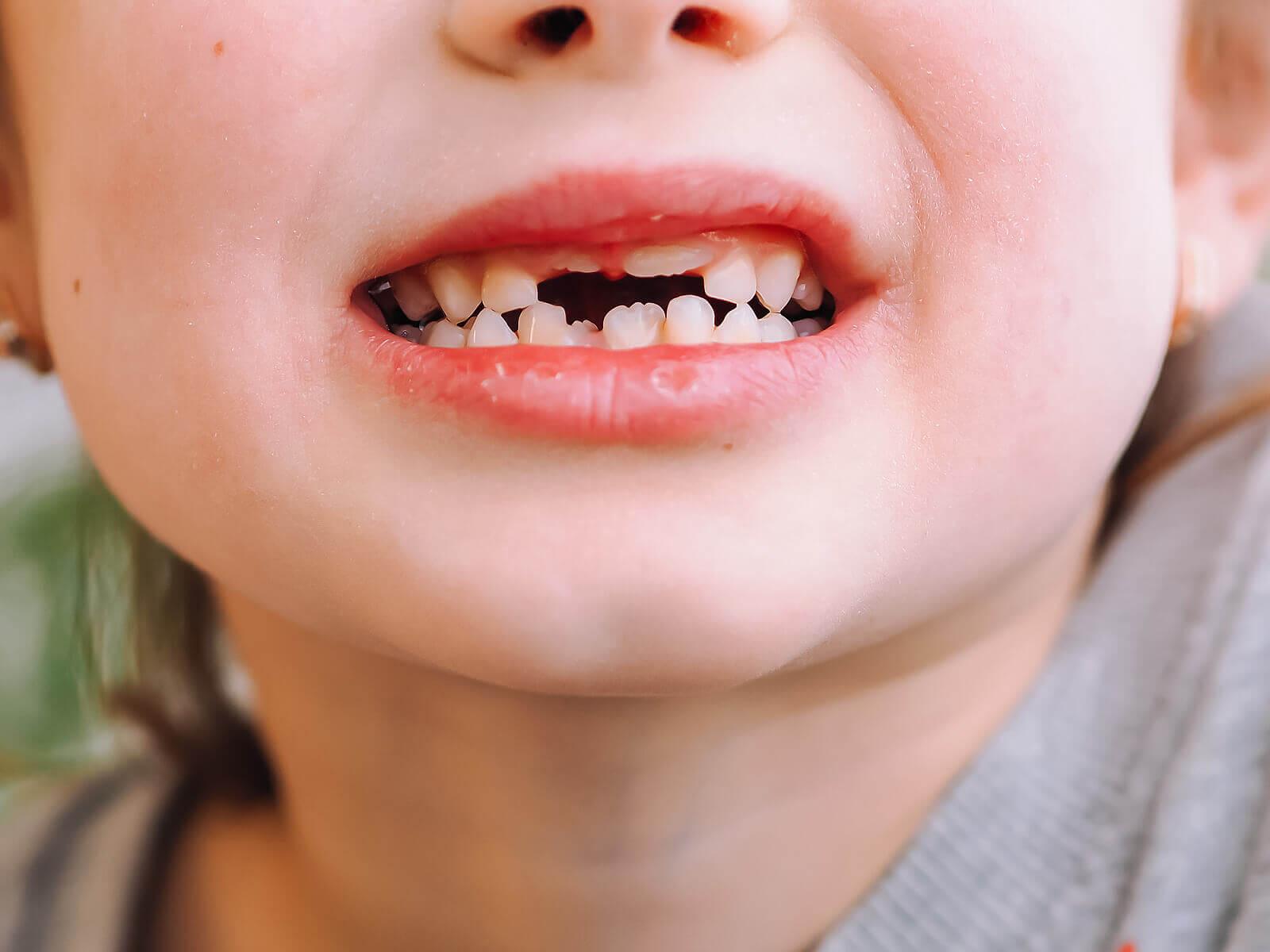Traumatismos em dentes de leite: o que fazer?