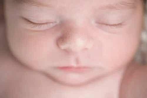 Miliums ou miliária em bebês: em que consiste?