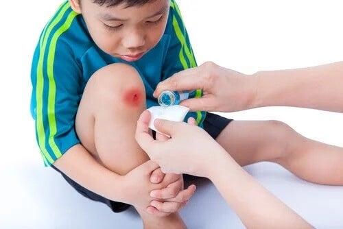15 dicas básicas para cuidar das feridas das crianças