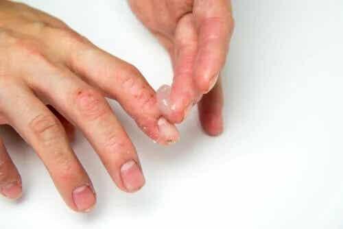 Eczema disidrótico em crianças: como tratar?
