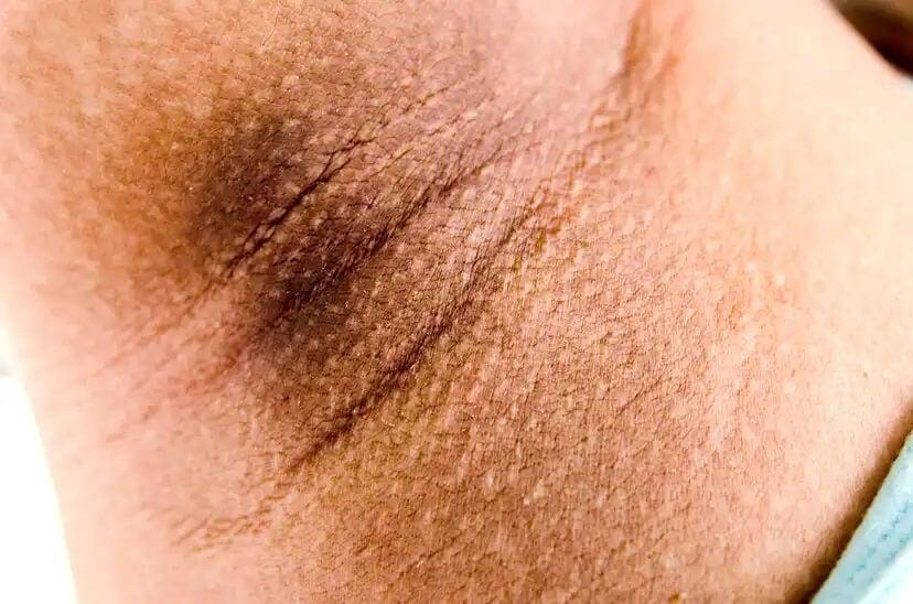 Acantose pigmentar na pele