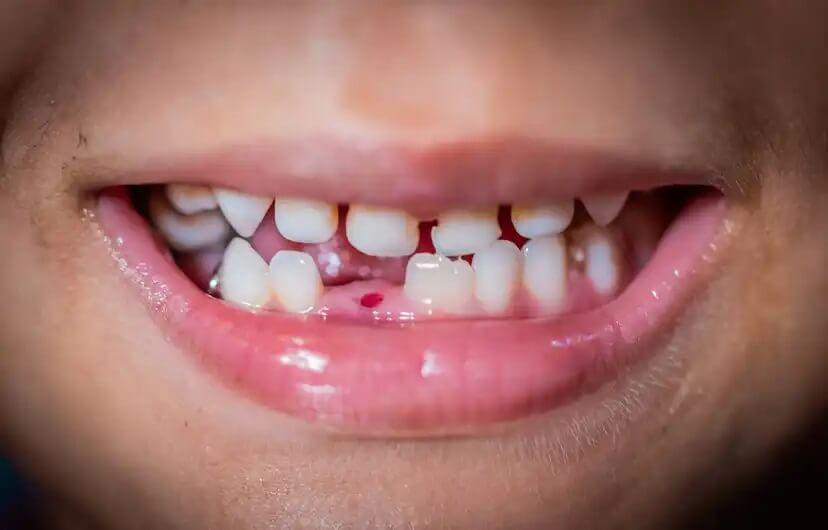 Criança com dente de leite caído.