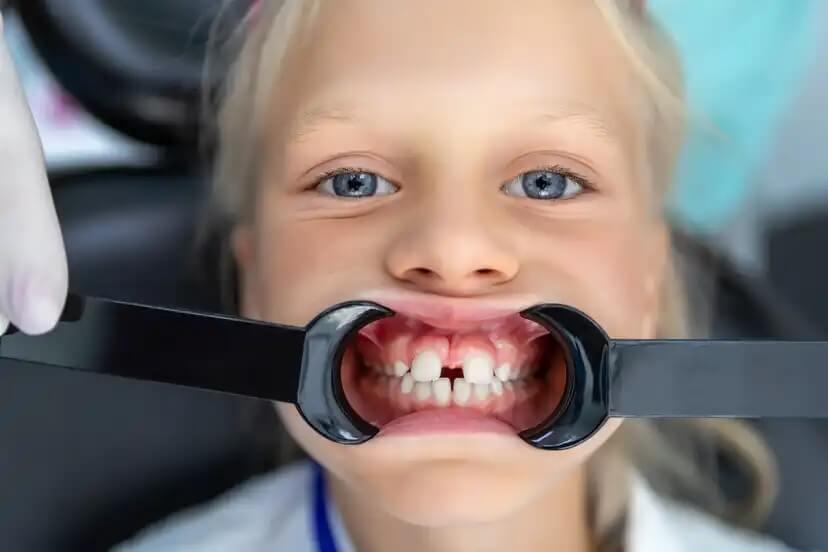Menina com diastema, uma das causas da deglutição atípica em crianças.