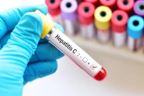 Hepatite C na gravidez