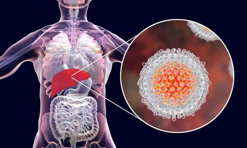 Como a hepatite C afeta o organismo.
