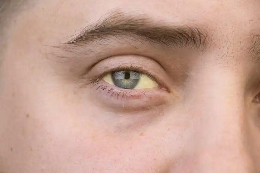 Pessoa com olhos amarelados devido à hepatite C.