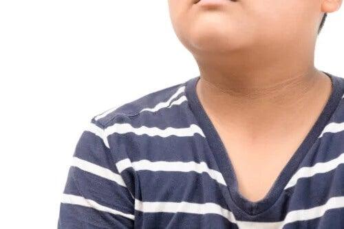 Acantose pigmentar em crianças: características, causas e tratamento