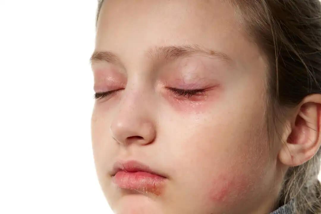 Olhos inchados: eczemas em crianças.