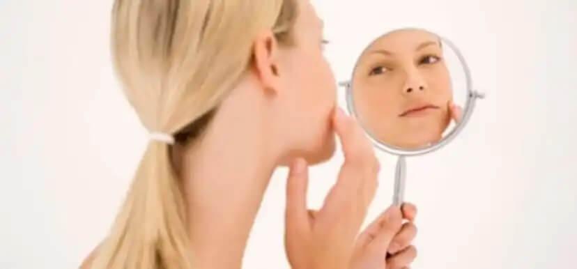 Dicas para melhorar a acne durante a gravidez
